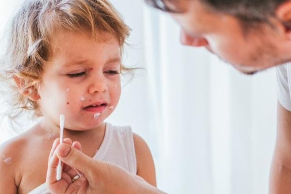 Smallpox scars in children - will they go away at all?